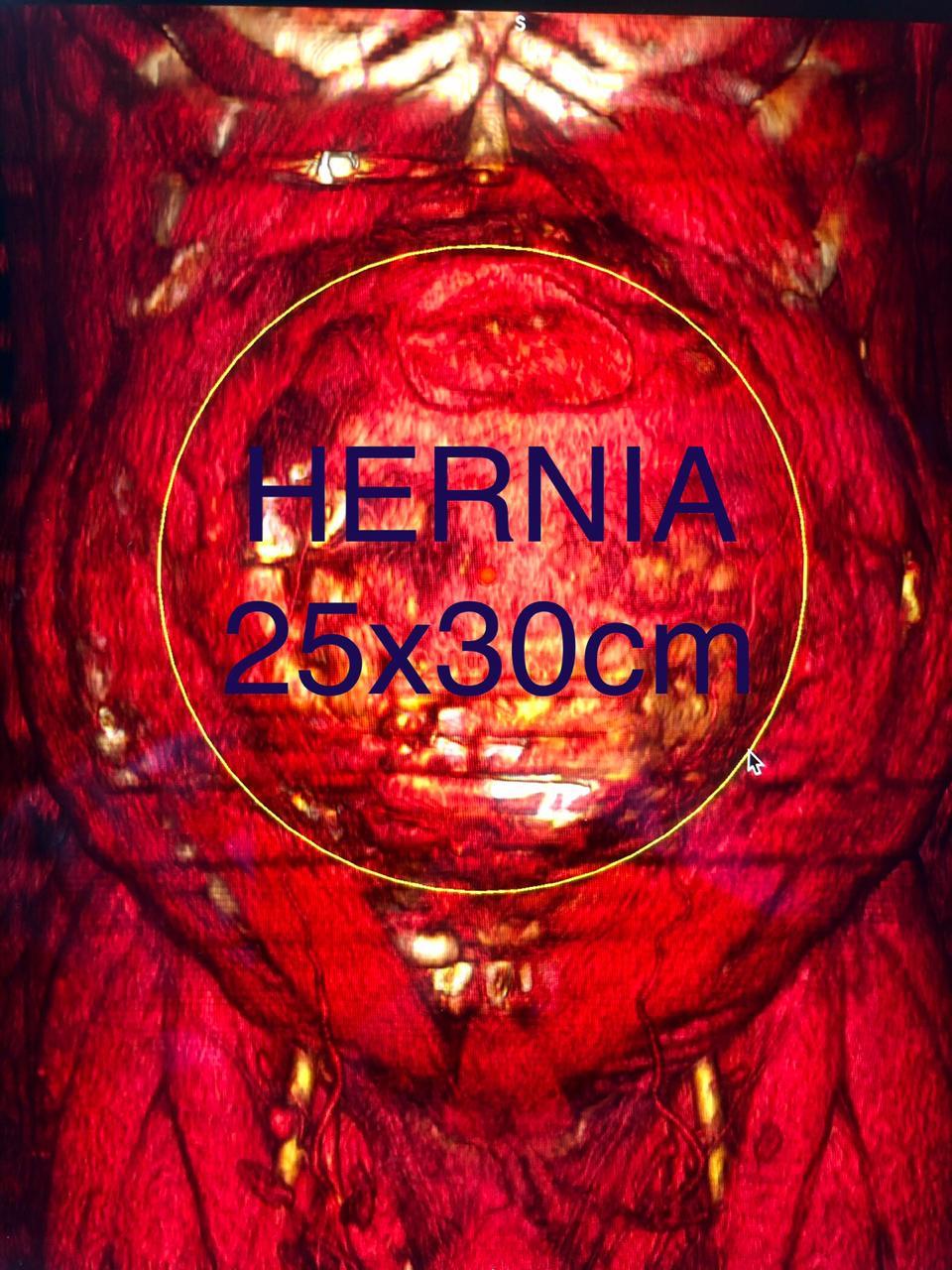 foto cirugía de hernia ventral