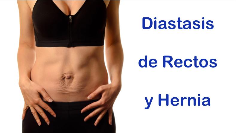 diástasis de rectos y hernia doctor especialista